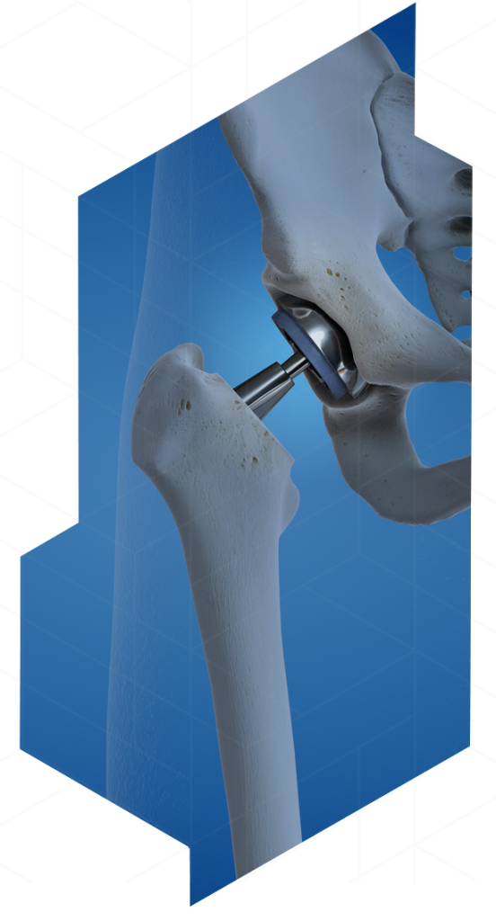 Anterior Hip Replacement Surgery with Dr. Geller, NYC